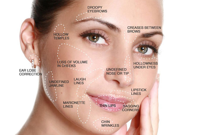 Top 5 Questions about Dermal Fillers