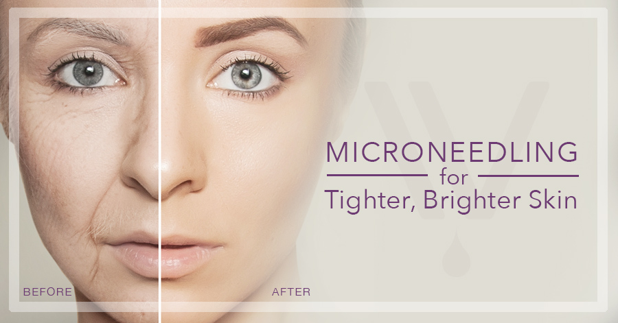 Microneedling for Tighter, Brighter Skin