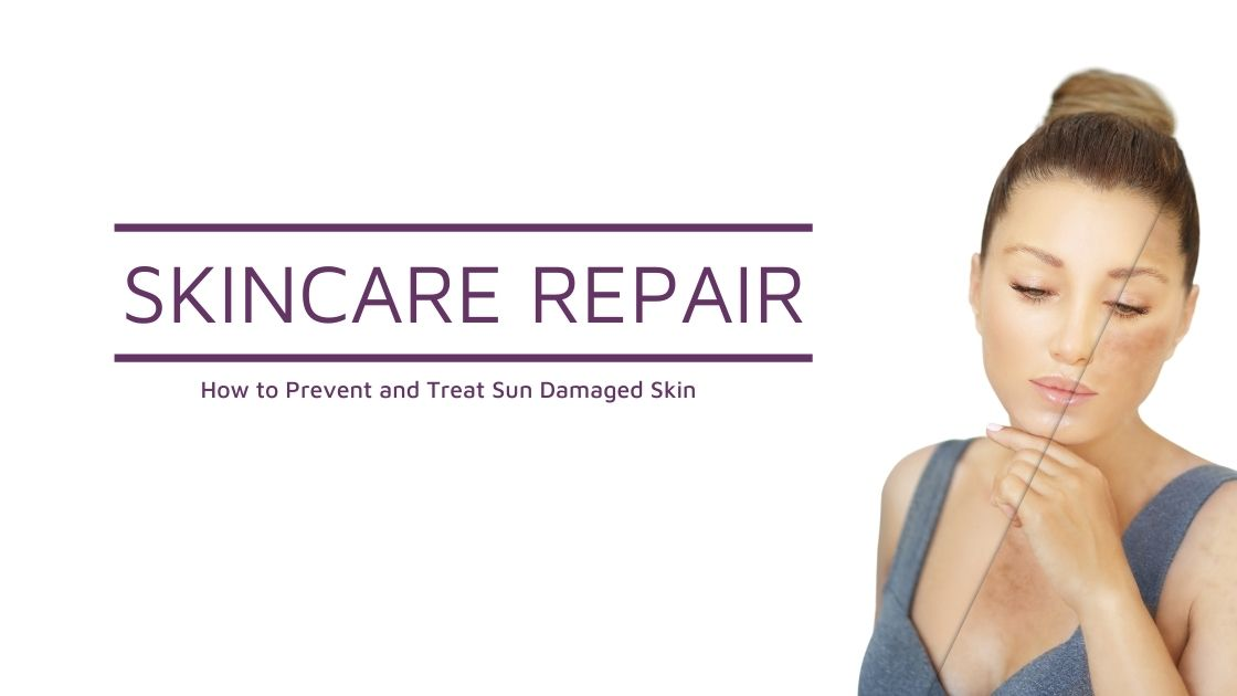 Skincare Repair: How to Prevent and Treat Sun Damaged Skin